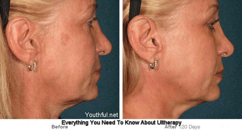 Ultherapy Review: Everything You Need to Know - Risks, Costs